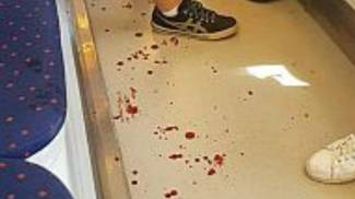 Le macchie di sangue nel vagone della tramvia